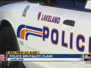 Man files lawsuit for alleged police brutality